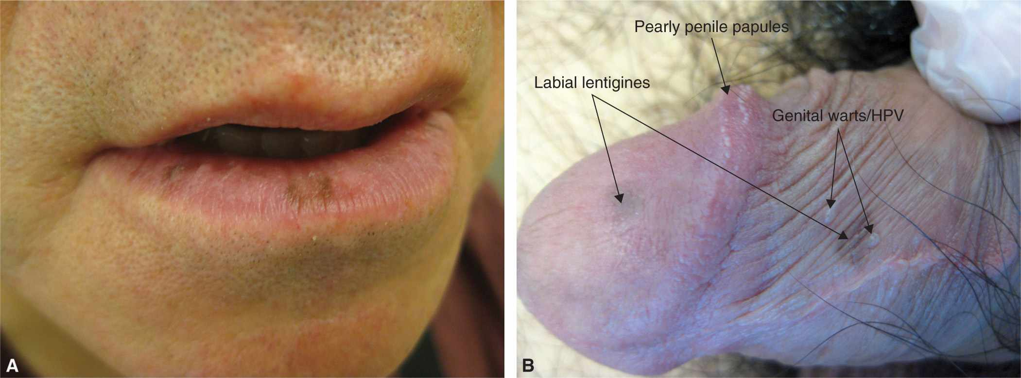 Pigmented Lesions And Melanoma  Plastic Surgery Key-8893