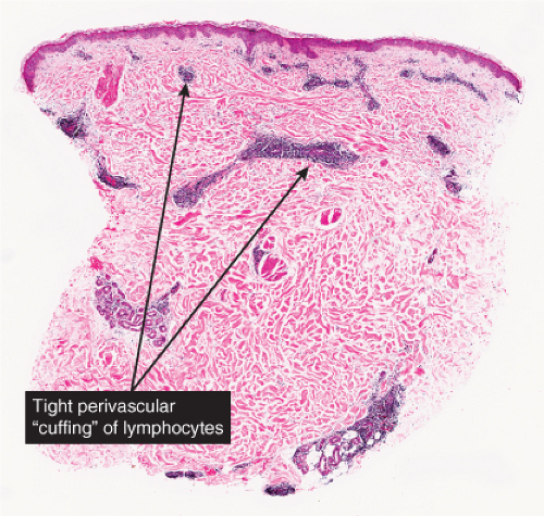 Perivascular, Diffuse and Granulomatous Infiltrates of the ...