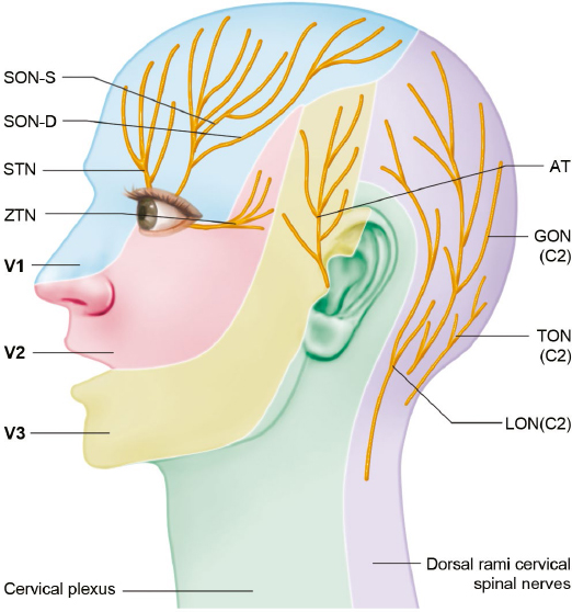 dermatone map with Sensory Nerves Of The Head And Neck on Kroppsomr V LandRygg Ben Man in addition Anatomy Review The Brachial Plexus additionally Dermatome Poster Small besides 2 in addition Trigeminal Neuralgia.