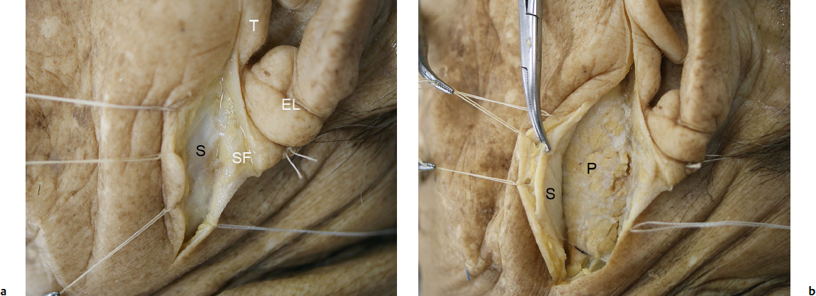 Superficial Musculoaponeurotic System and the Facial Soft Tissues ...