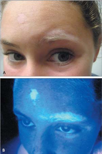 Woodu0027s Lamp Examination Reveals A U201cmilk Whiteu201d Fluorescence In Areas  Depigmented By Vitiligo. Note The Depigmented Eyebrows And Eyelashes.