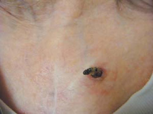 Premalignant and Malignant Skin Neoplasms   Plastic Surgery Key