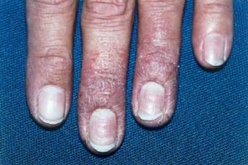 Eczema Plastic Surgery Key