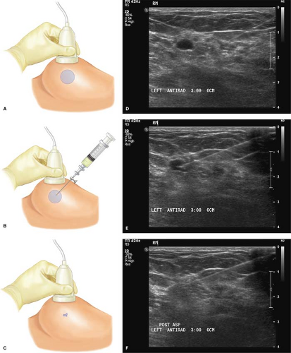 Drainage Of Breast Cysts And Abscesses Plastic Surgery Key