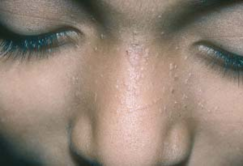 Superficial Viral Infections Plastic Surgery Key