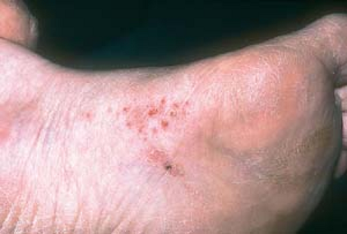 pruritic manifestations of corticosteroid-responsive dermatoses