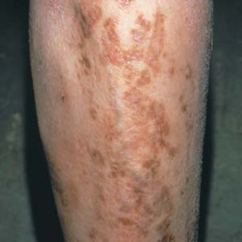 Cutaneous Manifestations of Systemic Disease | Plastic ...