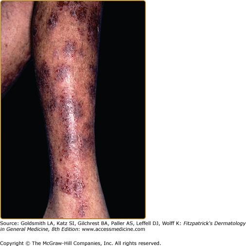 Nummular Eczema, Lichen Simplex Chronicus, and Prurigo
