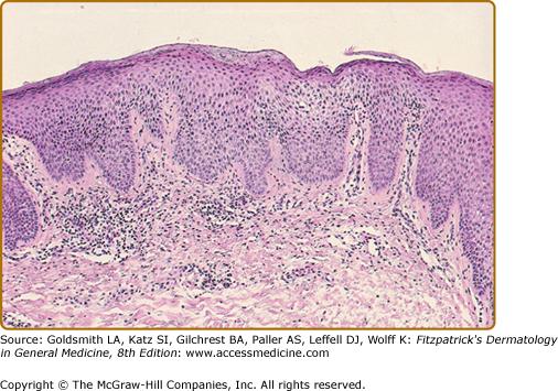 Nummular Eczema, Lichen Simplex Chronicus, and Prurigo ...