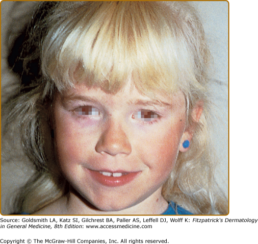 Albinism And Other Genetic Disorders Of Pigmentation