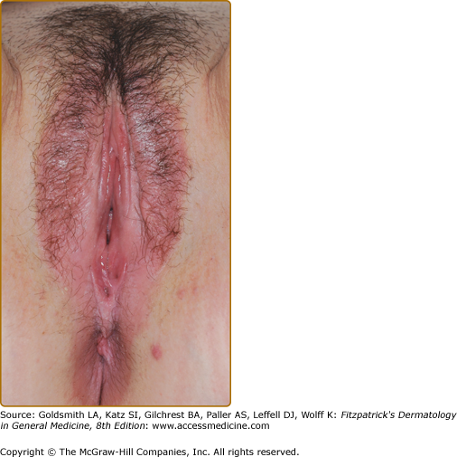 Skin conditions around vulva