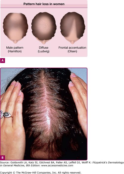 Hair Growth Disorders Plastic Surgery Key