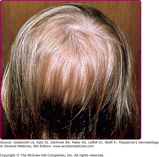 9bc135c4c97 Loose anagen hair syndrome with diffuse hair loss. (From Olsen EA et al:  The presence of loose anagen hairs obtained by hair pull in the normal  population.