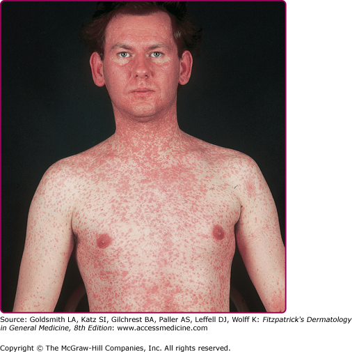 Viral Infection Link To Sjogren S Syndrome: Exanthematous Viral Diseases