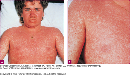 Exanthematous Viral Diseases | Plastic Surgery Key