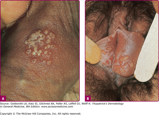 Herpes On Shaft Of Penis