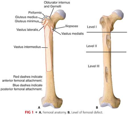 Total Hip Arthroplasty With Femoral Bone Loss Fluted Stems
