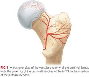 slipped epithesis Slipped capital femoral epiphysis, also known as scfe, is a hip problem that most frequently affects 10-14 year old boys and 9 -15 year old girls the growing end (epiphysis) of the thigh bone (femur) slips off from the top of the femur.