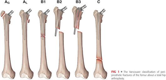 Of Periprosthetic Fractures About Below Total Hip Arthroplasty