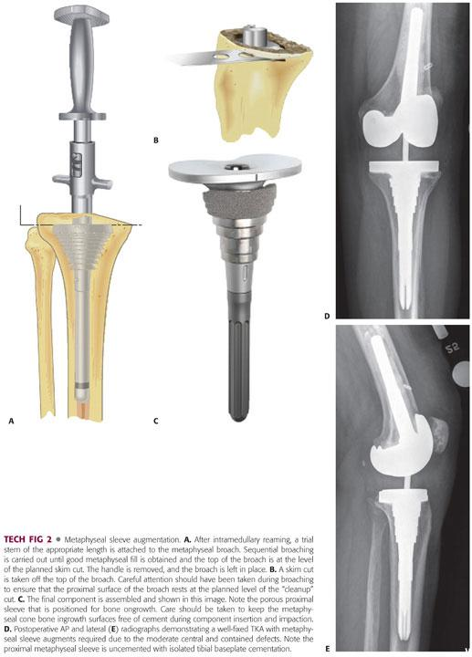 Total Knee Arthroplasty with Tibial Bone Loss: Metal