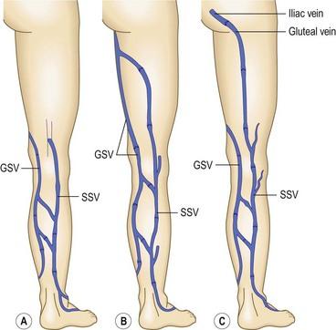 anatomy | plastic surgery key, Human Body
