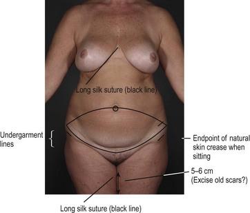 Aesthetic classification of the abdomen | Plastic Surgery Key