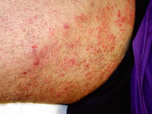 Fungal Infections | Plastic Surgery Key