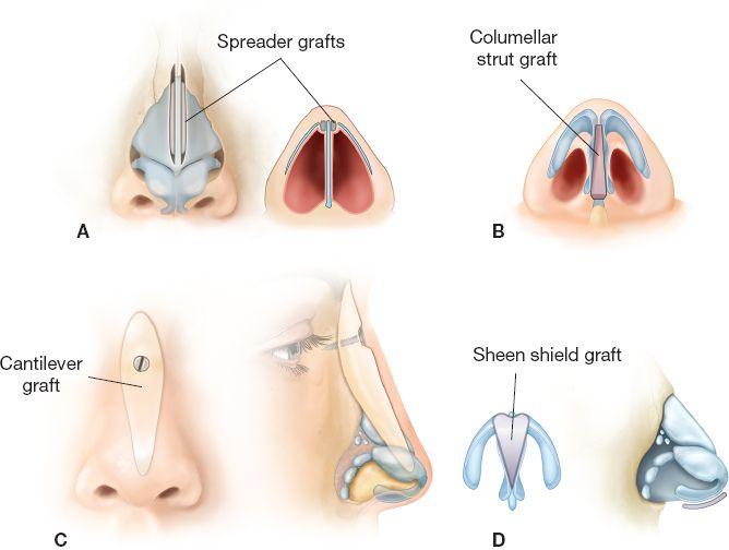 Rhinoplasty Plastic Surgery Key