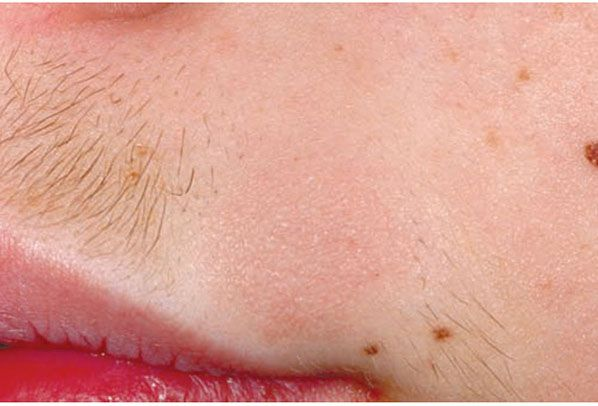 Inflammatory Diseases Of Hair Follicles Sweat Glands And