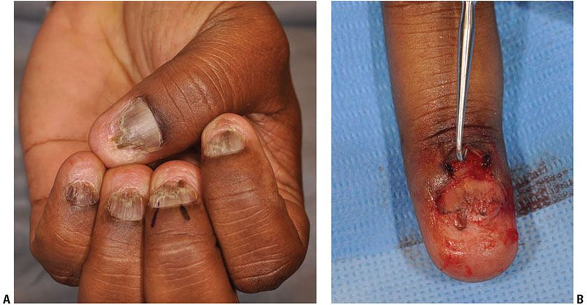 Inflammatory Diseases of the Nail | Plastic Surgery Key