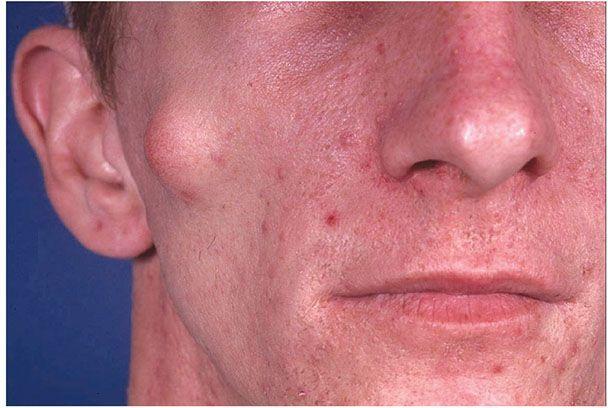 Gardner Syndrome Skin