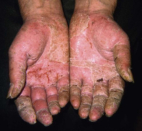irritant contact dermatitis plastic surgery key