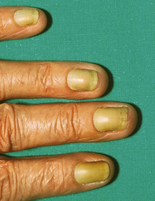 Yellow nail syndrome | Plastic Surgery Key