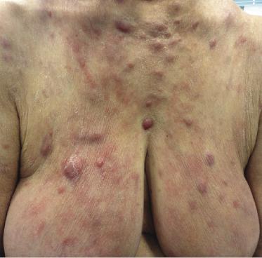 papules lymphoma - photo #11