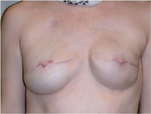 Breast reconstruction with expander