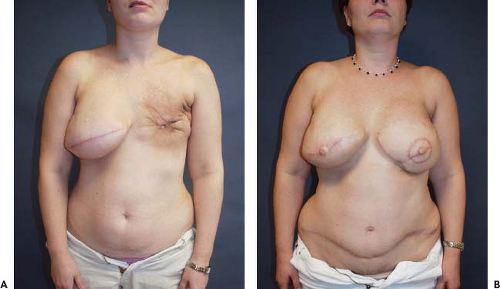 after breast radiation implant
