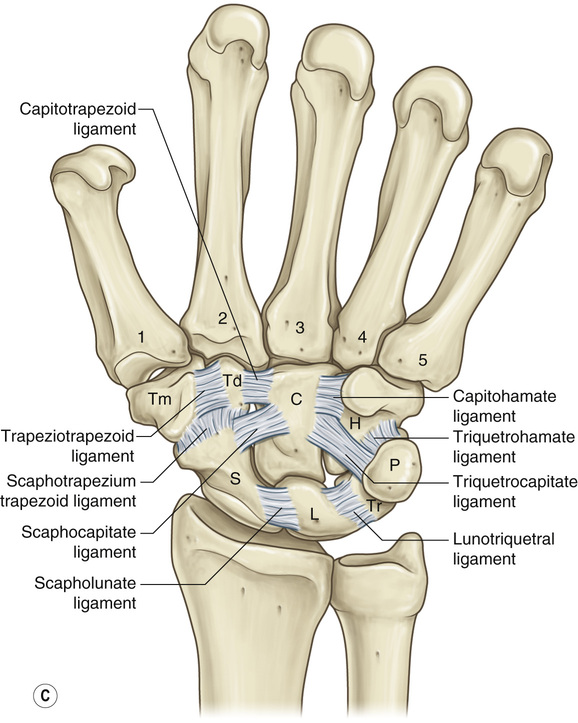 plane joint injuries with Carpal Injuries And Hand Arthritis on Equine Nerve Joint Blocks in addition 5949505 likewise Tibial Plateau Fracture in addition Hallux Valgus Deformity Bunion additionally Printarticle.