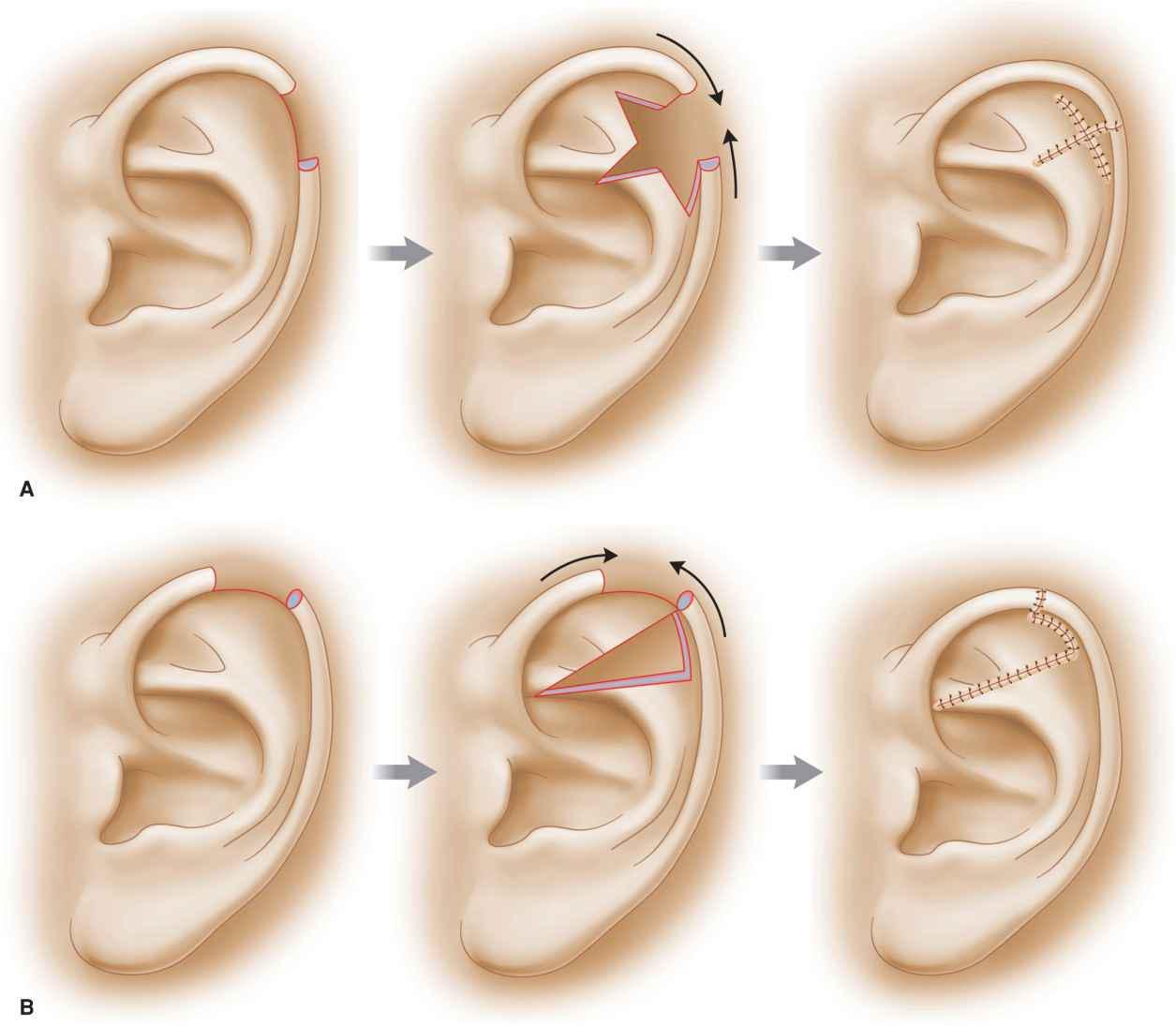 Ear | Plastic Surgery Key