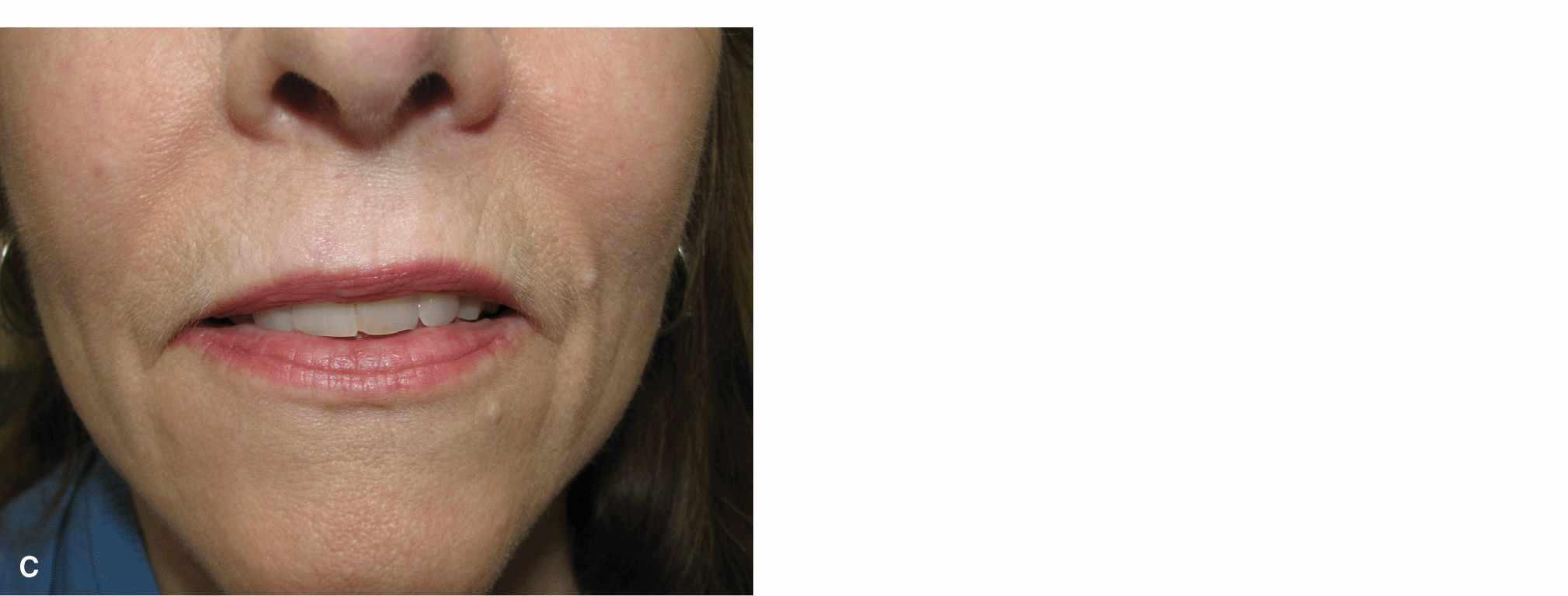 Lip | Plastic Surgery Key