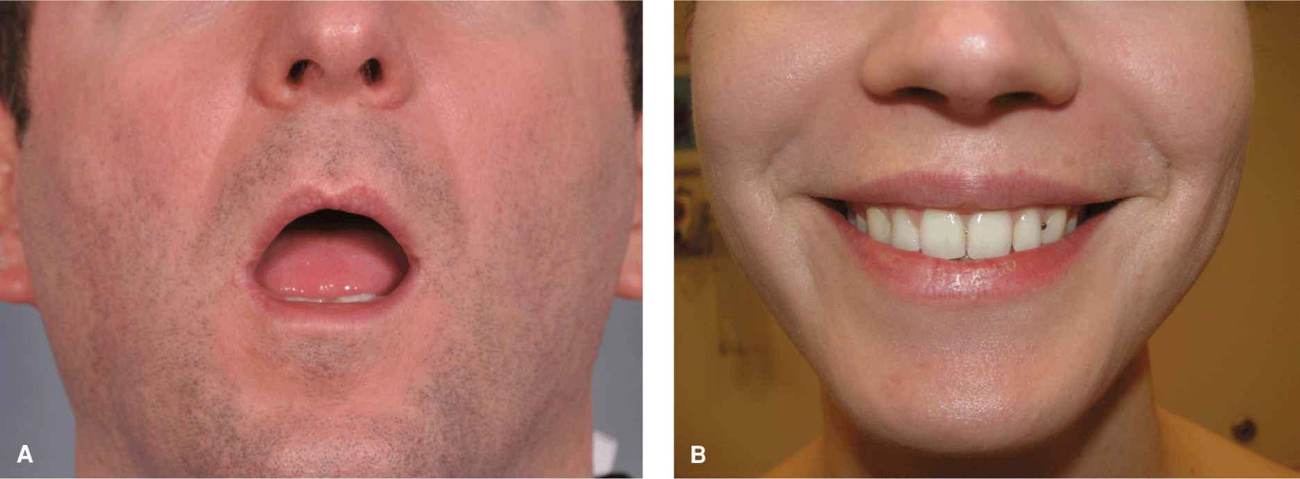 Lip   Plastic Surgery Key