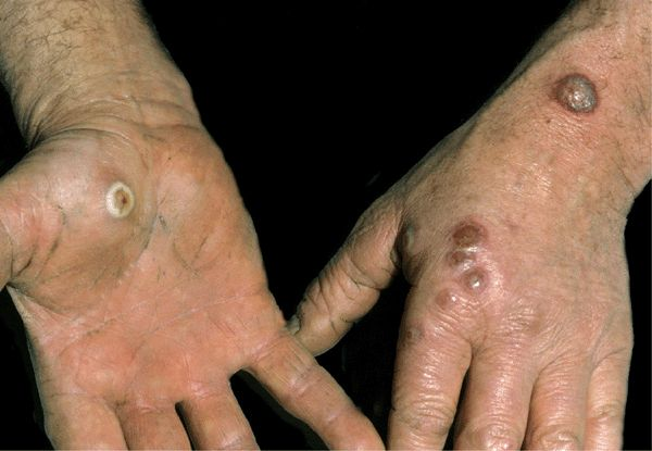 27 VIRAL DISEASES OF SKIN AND MUCOSA | Plastic Surgery Key