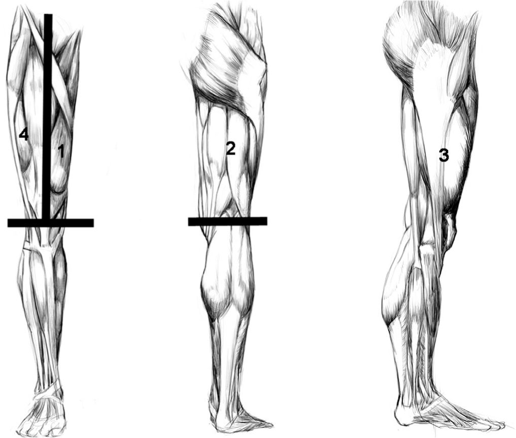 Common Patterns of Abnormal Veins: Guide and Summary by Region ...