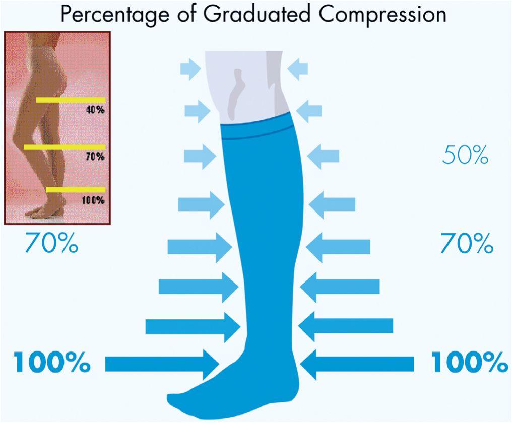 Как правильно сделать замеры компрессионное белье