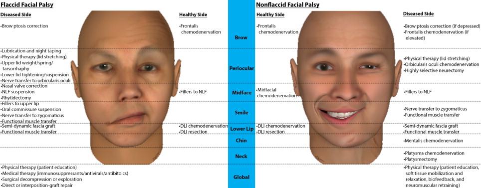 Facial reanimation surgery