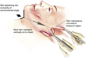 Vertical Neck Lifting | Plastic Surgery Key