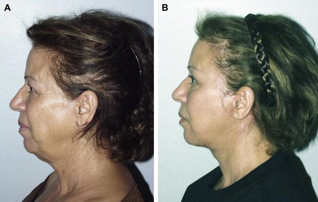 Lower Facial Rejuvenation in the Non-Caucasian Face ...
