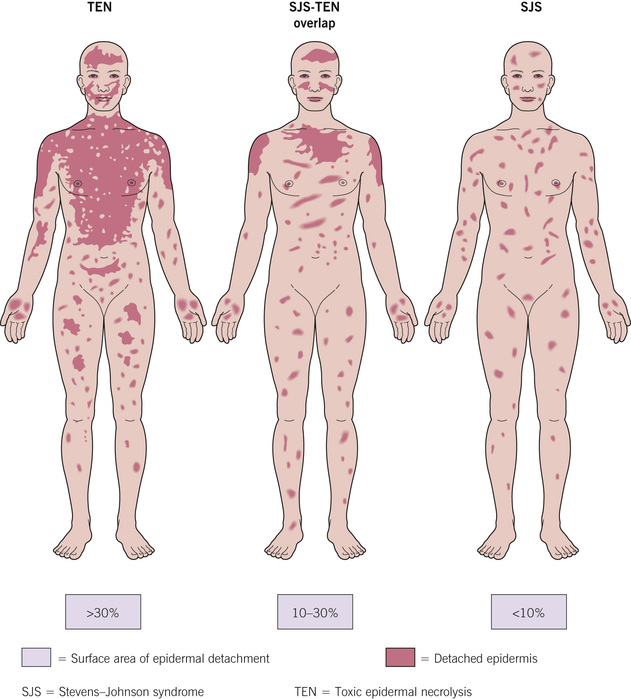 toxic epidermal necrolysis essay Once sjs has affected a certain amount of skin, it may then be diagnosed as toxic epidermal necrolysis syndrome (tens) in medical literature, sjs and tens are the.